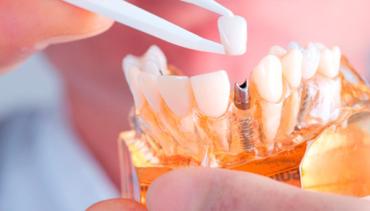 Dental Implants in Kenora